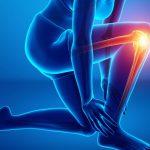 Мифы ЗОЖ: Коллаген спасает от боли в суставах 💪🦵